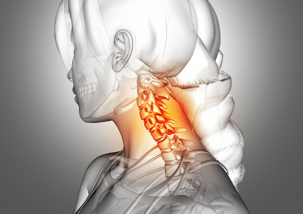 trazioni cervicali cervicalgia fisioterapia